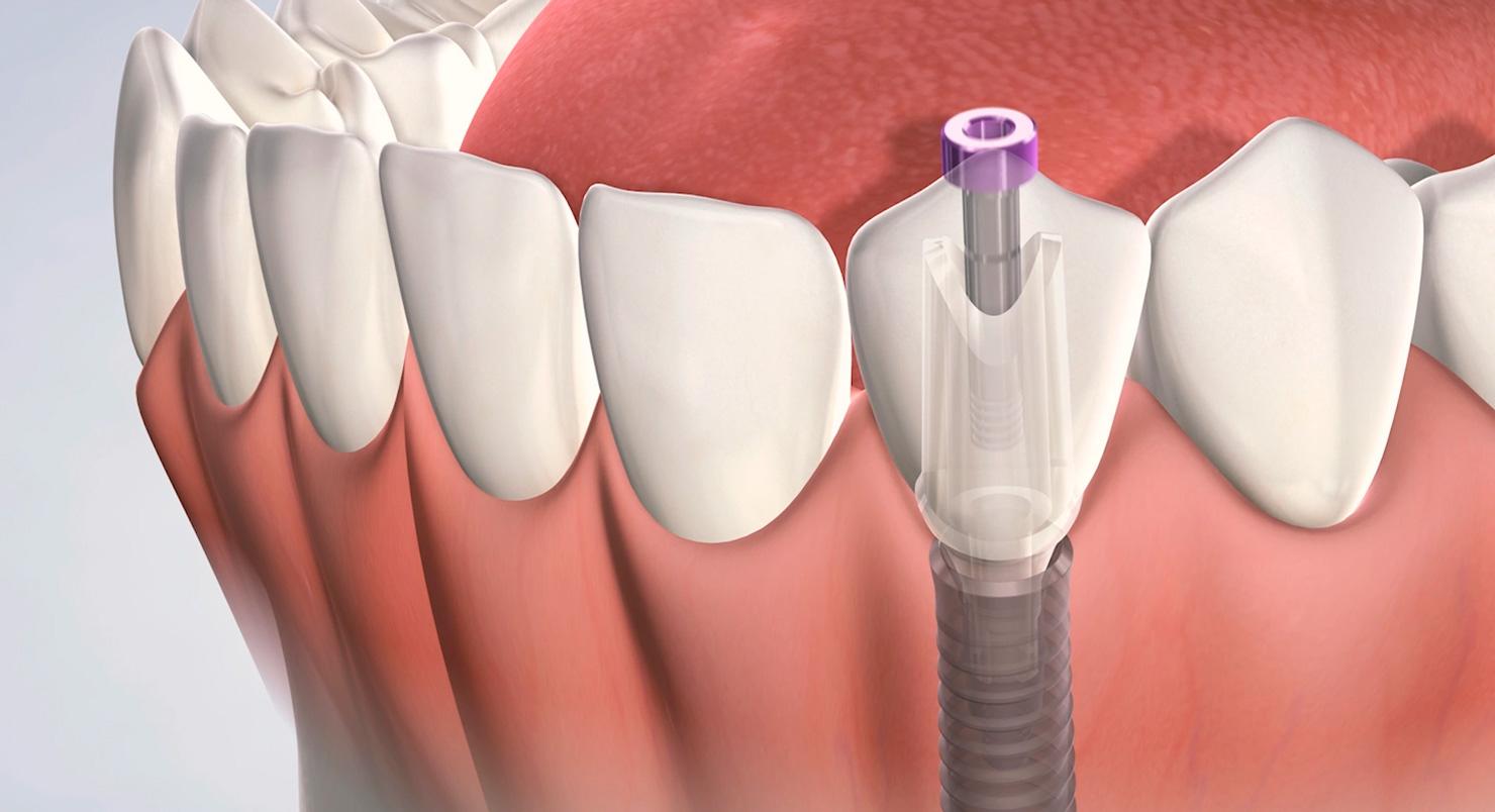 Как происходит имплантация зубов: что это такое и описание операции по установке имплантов, противопоказания