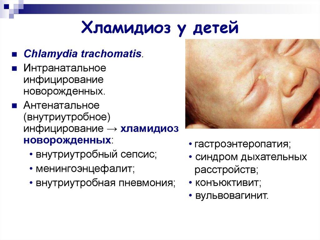 Хламидиоз. как он передается, симптомы хламидиоза, современная диагностика, эффективное лечение заболевания. :: polismed.com