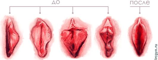 Половые губы - внутренние (малые) и наружные (большие)