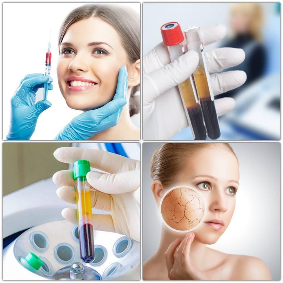 Prp-терапия (лечение плазмой обогащенной тромбоцитами)