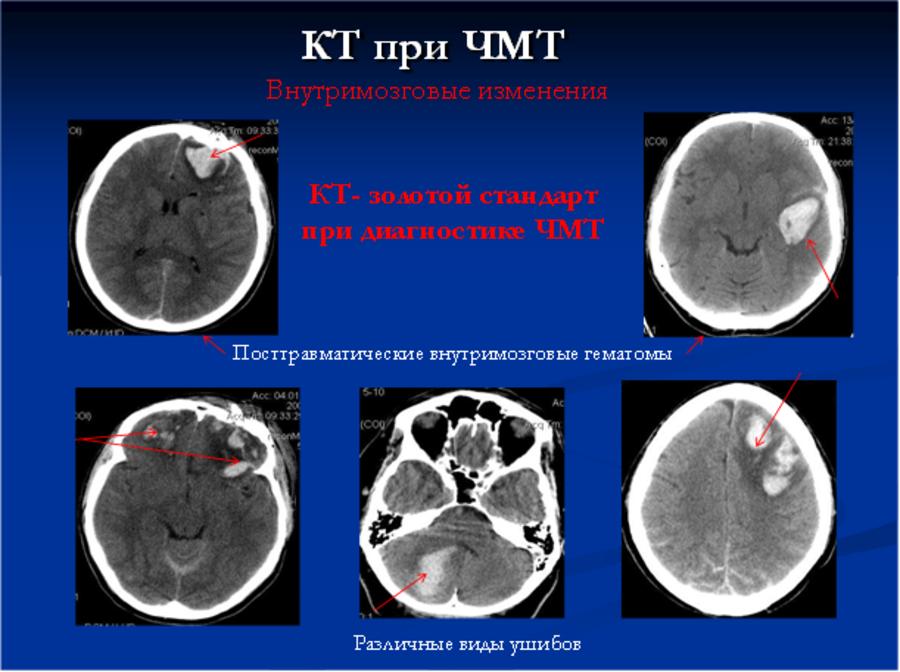 Кт головного мозга: что показывает с контрастом, как делают, расшифровка