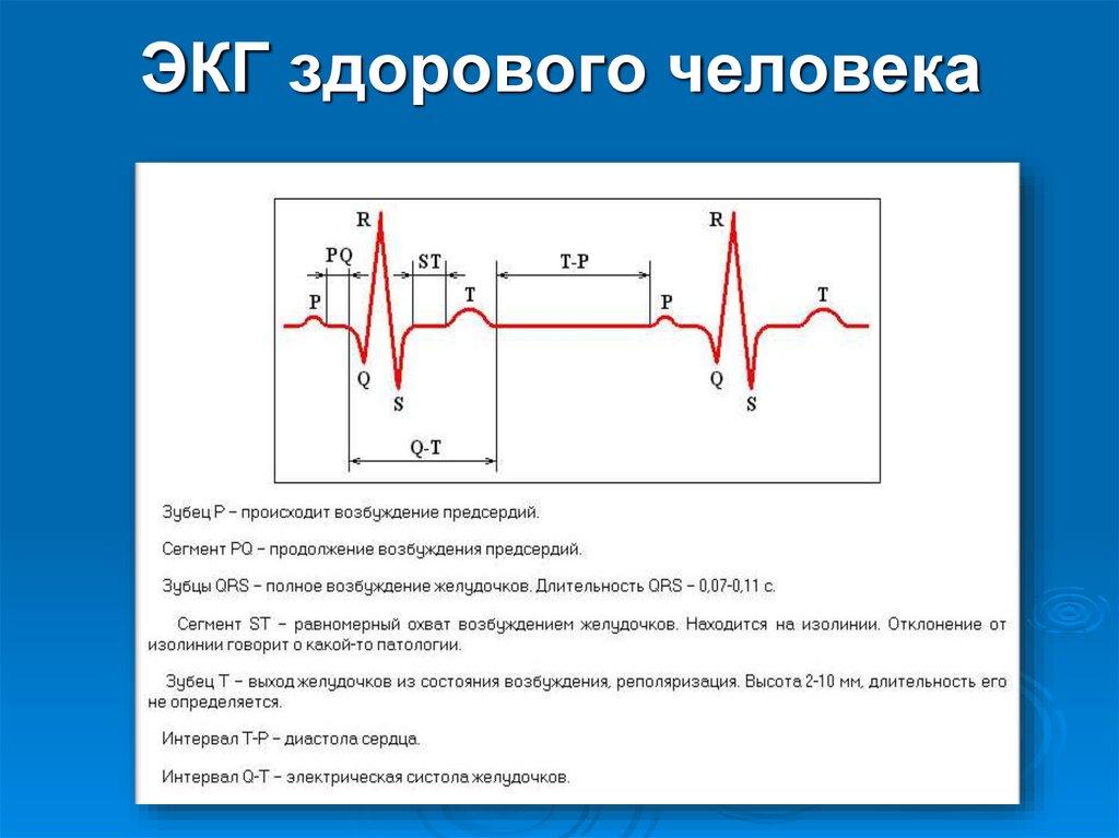 Электрокардиография или экг – что это такое?