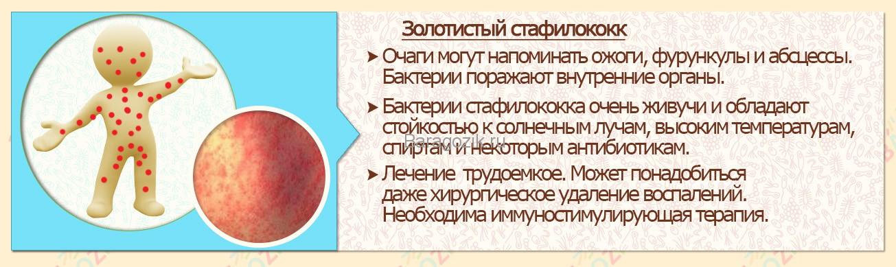 Симптомы и лечение золотистого стафилококка у ребенка и взрослого