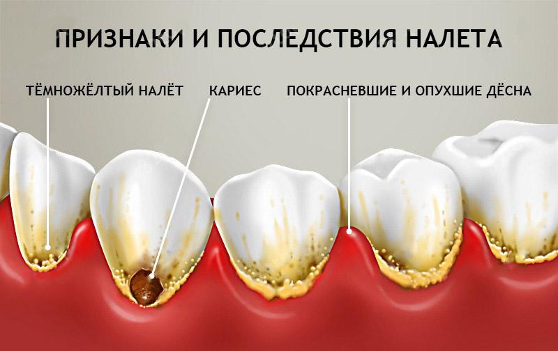 Зубной камень - причины, профилактика и удаление зубного камня
