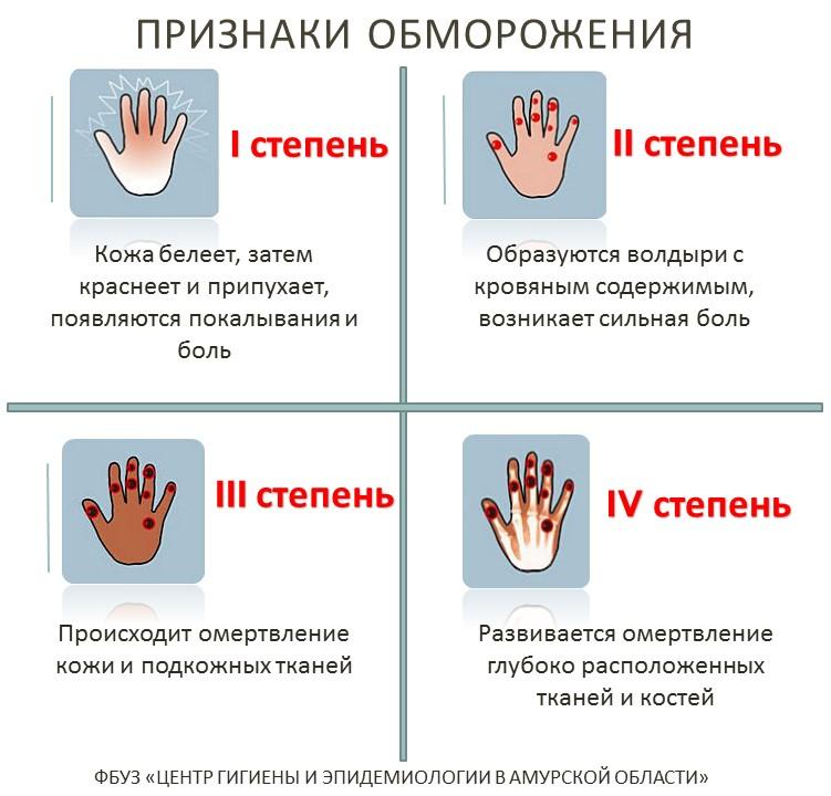 Обморожение (отморожение). причины, первая помощь, степени и возможные последствия :: polismed.com