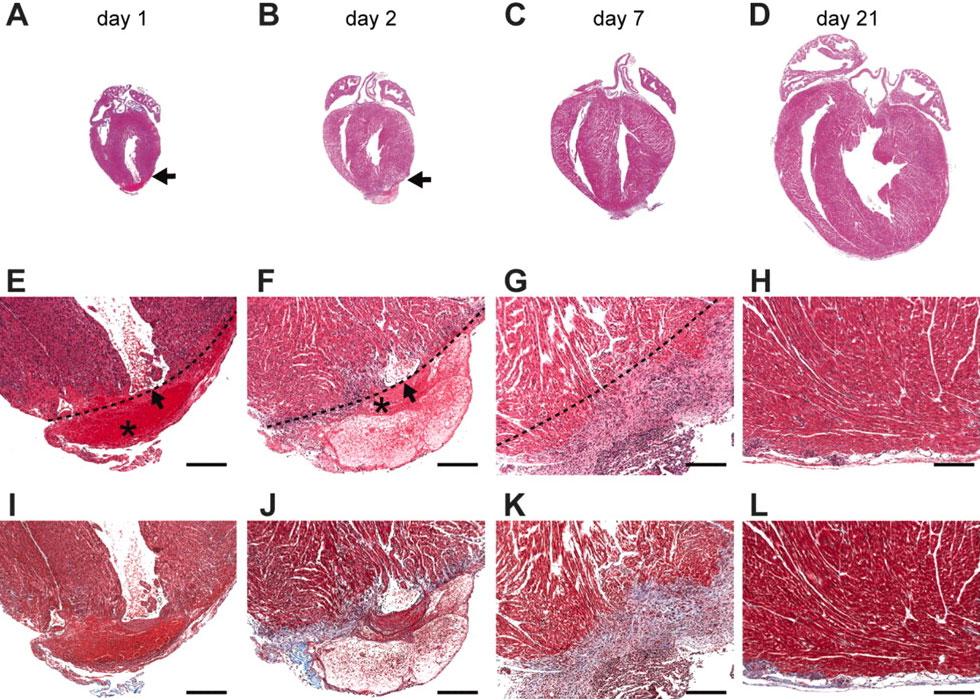 Регенерация (восстановление). что такое регенерация тканей? ?