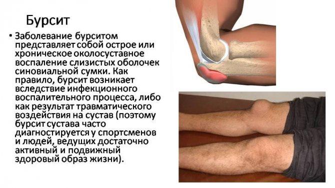 Полный обзор бурсита плечевого сустава: причины, симптомы и лечение