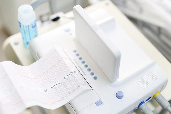 Ктг - кардиотокография плода: как проводится процедура