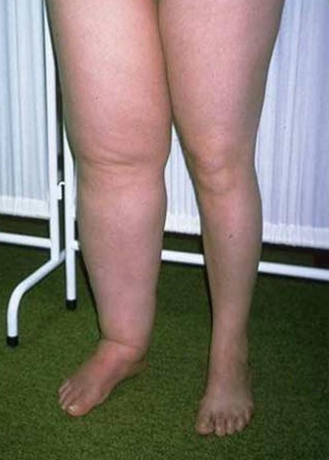 Лимфостаз нижних и верхних конечностей - лечение, симптомы, причины