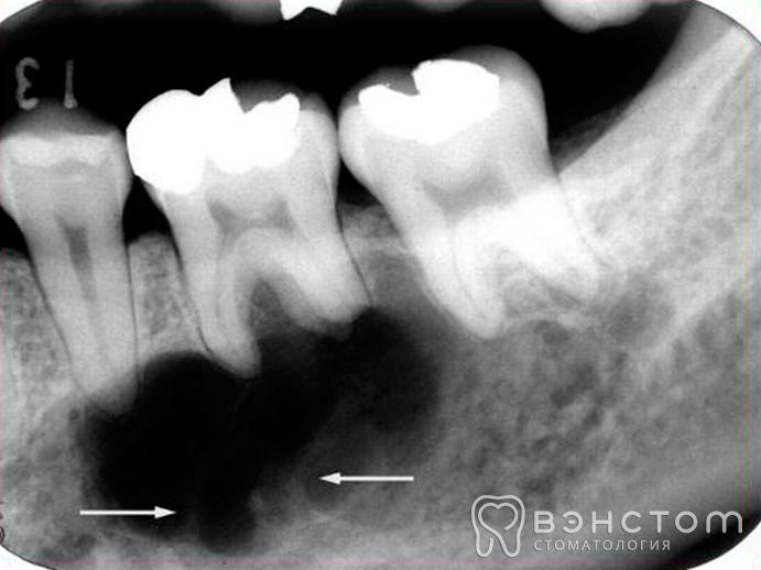 Что такое киста на зубе, какие виды бывают, лечение или удаление?