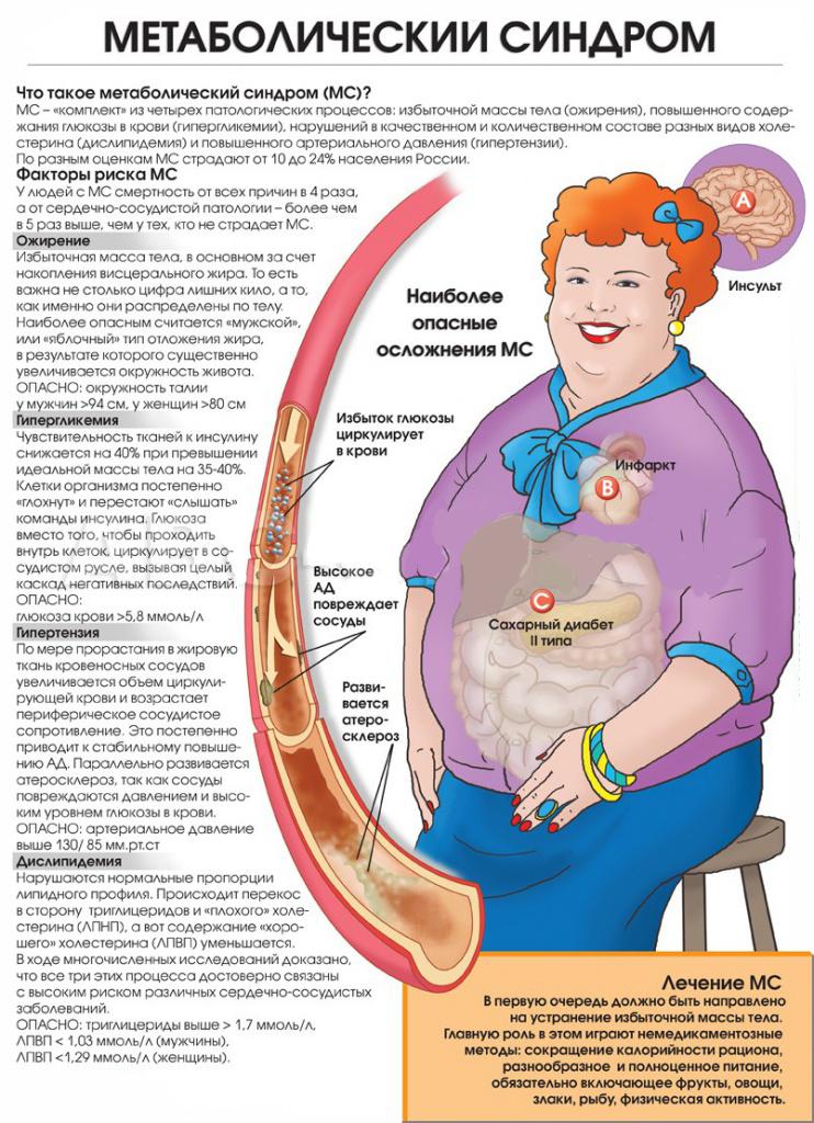 Метаболический синдром: развитие, признаки, лечение