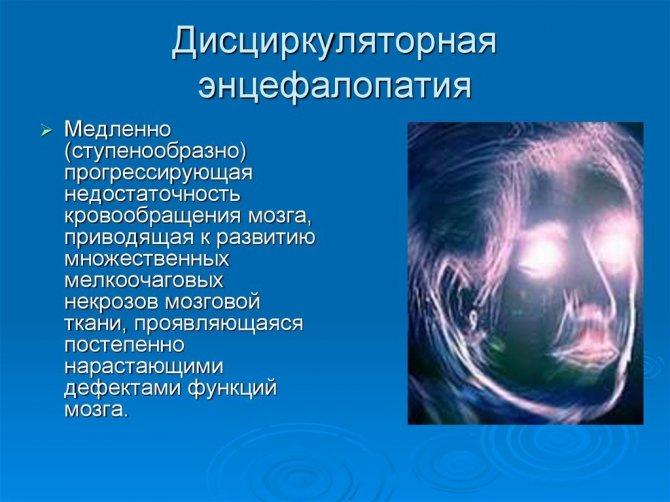 Дисциркуляторная энцефалопатия головного мозга - причины, симптомы, диагностика и стандарты лечения