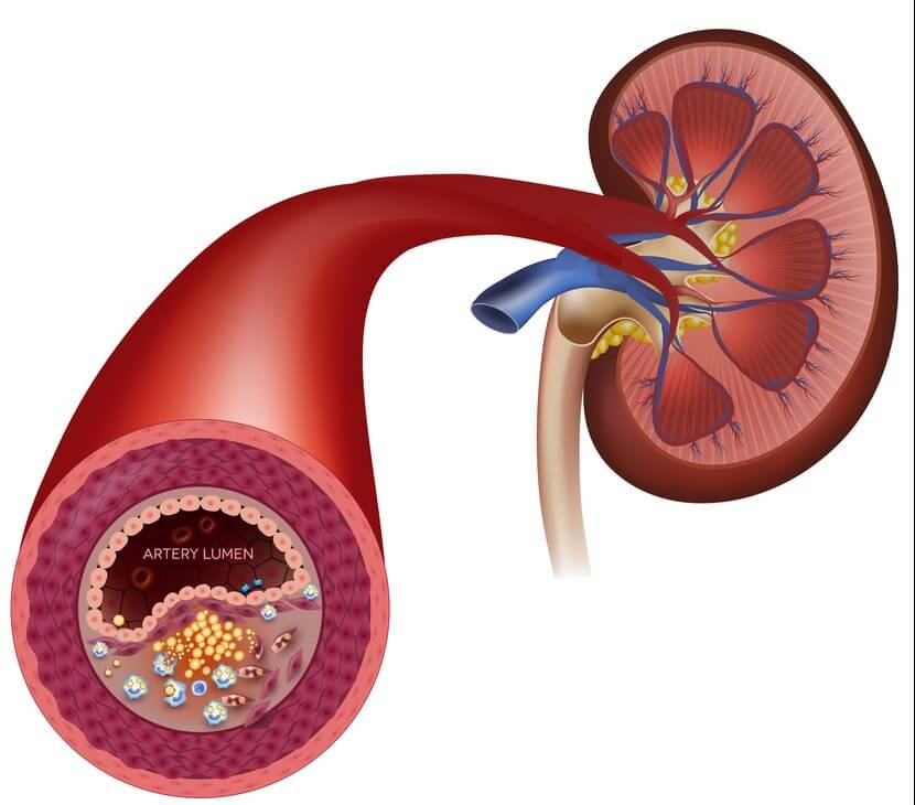 Реноваскулярная гипертензия: причины, симптомы заболевания