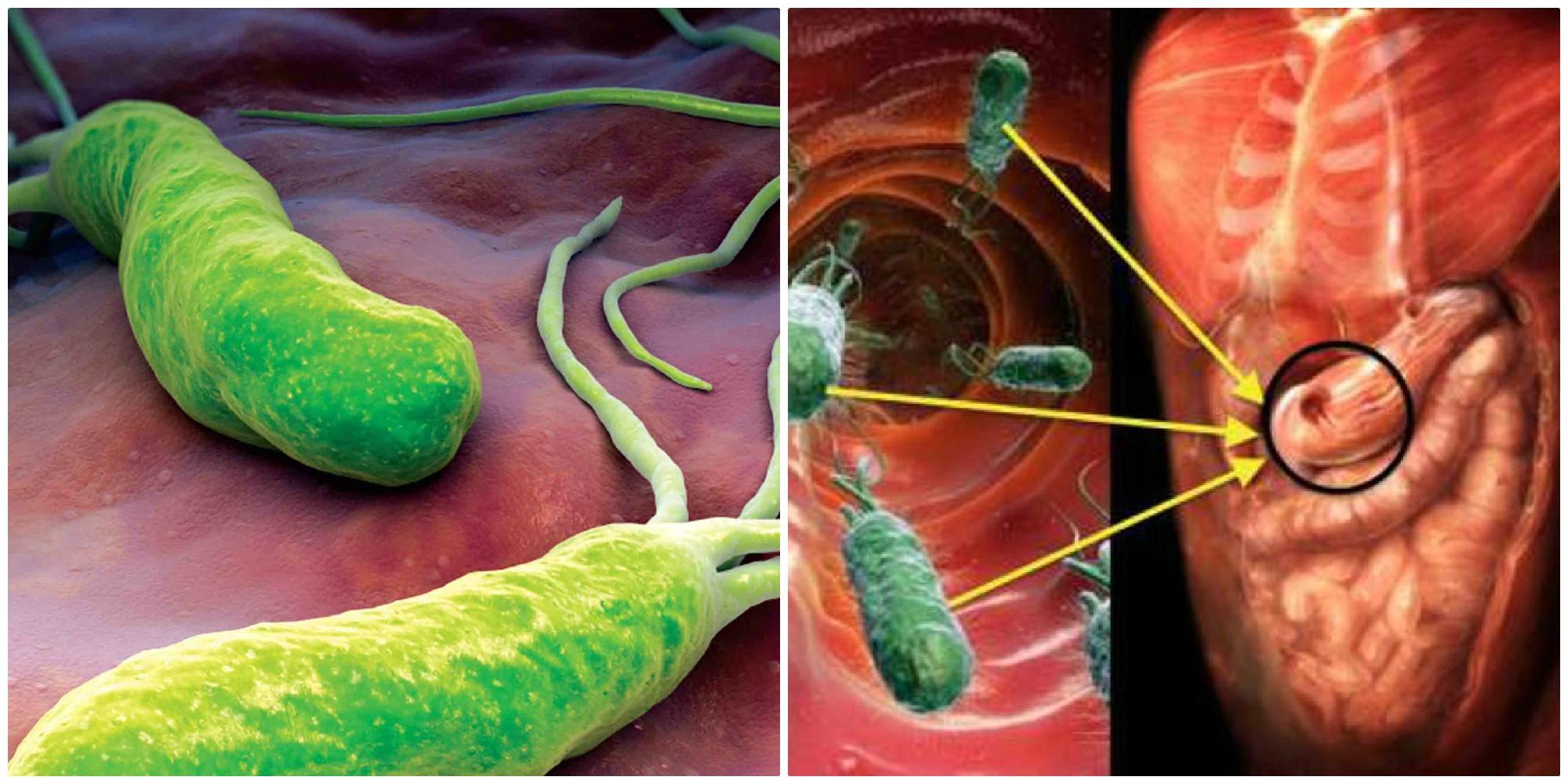Как избавиться от хеликобактер пилори? схема лечения хеликобактериоза.