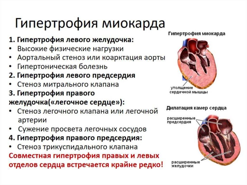 Кардиомегалия у человека: что это, причины болезни, лечение синдрома бычьего сердца - медзабота