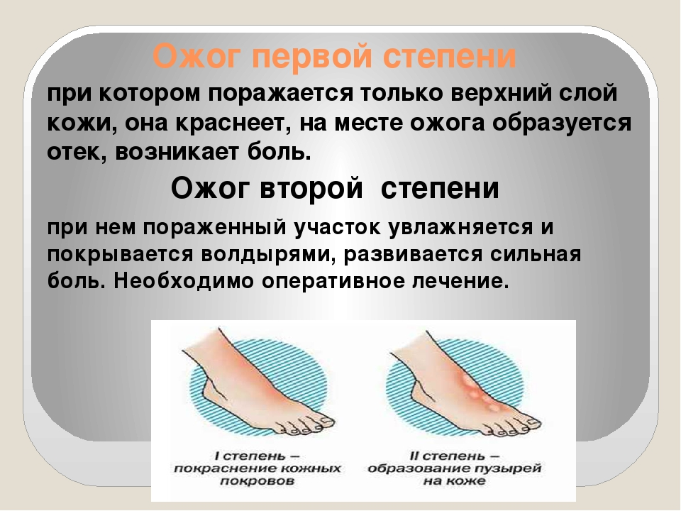 Ожоги: виды, степени, осложнения | materlife.ru