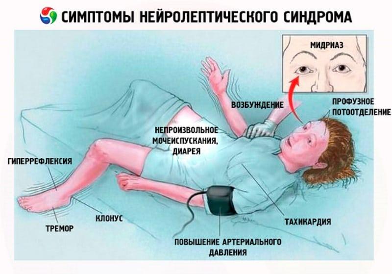 Серотониновый синдром что это такое