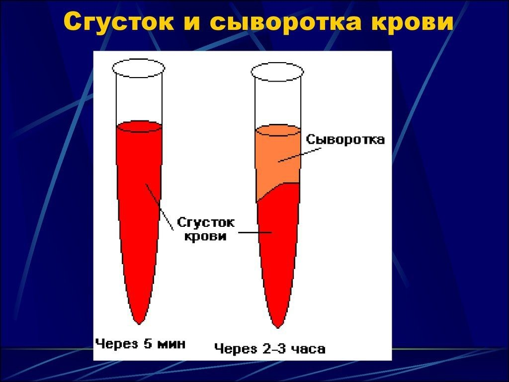 Реакция вассермана, анализ крови rw на сифилис
