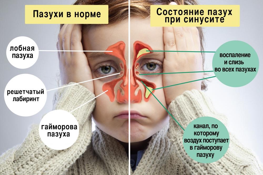 Что такое синусит? как лечить заболевание