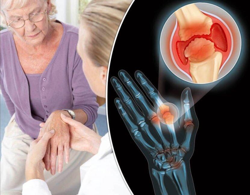 Что такое остеоартрит суставов: причины, симптомы и рекомендации лечения