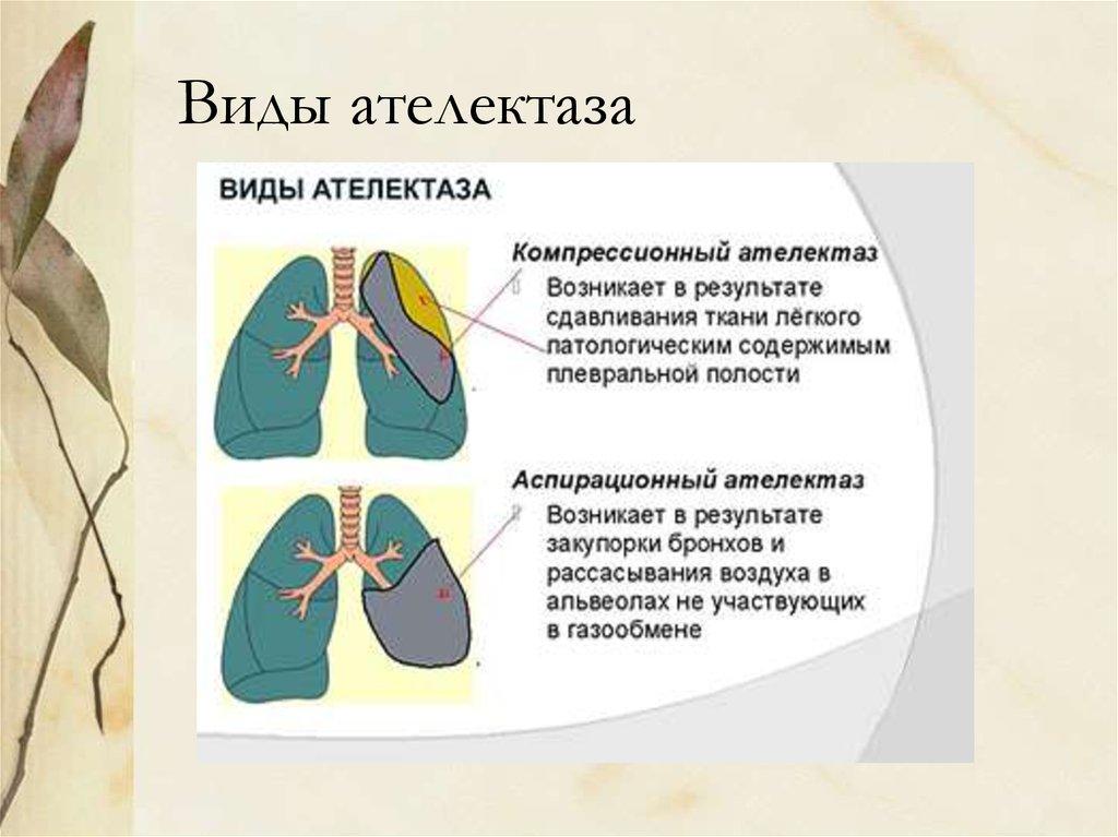 Что такое ателектаз легкого, его разновидности и лечение pulmono.ru что такое ателектаз легкого, его разновидности и лечение