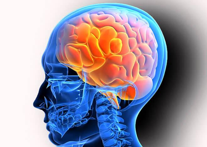 Арахноидальная киста головного мозга: что это такое, симптомы, лечение