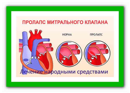 Пролапс митрального клапана (пмк): что это, чем опасен, симптомы, диагноз, лечение заболевания