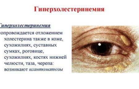 Гиперхолестеринемия что это такое и как лечить - ососудах