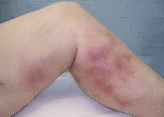Тромбофлебит: что такое, симптомы, как лечить и чем отличается тромбоз от тромбофлебита