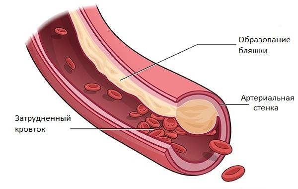Наследственный холестерин (семейная гиперхолестеринемия): что это такое, причины и лечение