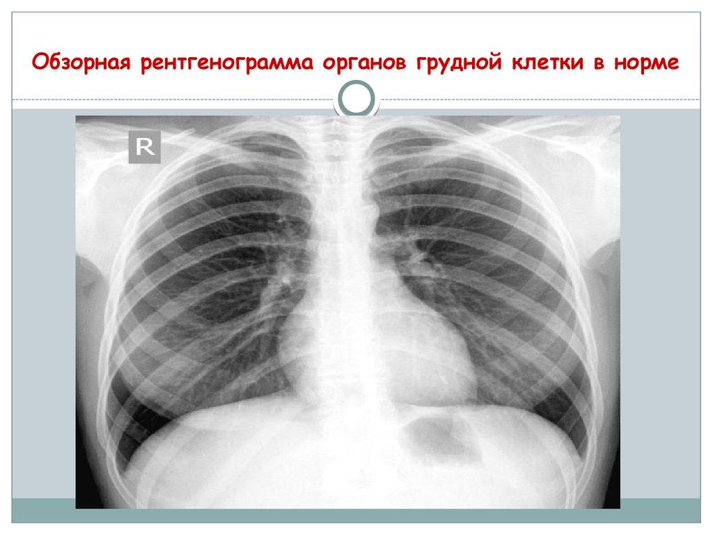 Ком в грудной клетке: причины, симптомы, профилактика.