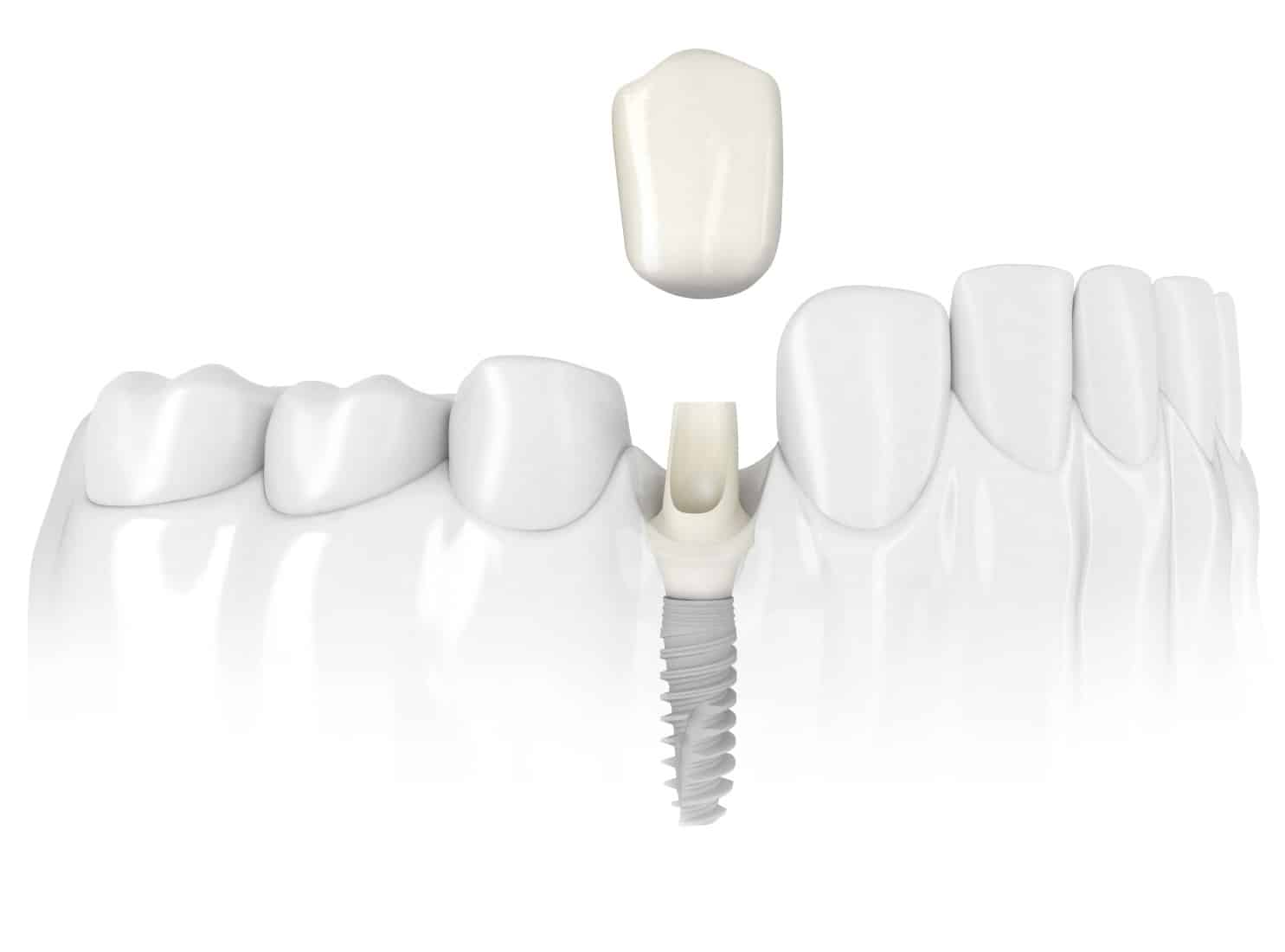 Как ставят имплантанты зубов — этапы имплантации зубов, цены, фото