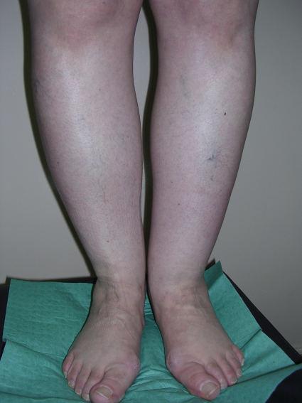 Лимфостаз - причины и лечение. лимфостаз нижних конечностей
