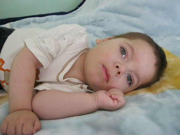 Признаки и лечение синдрома веста у детей - о болезнях