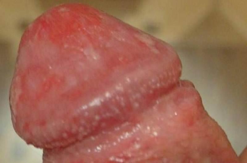 Как проявляется молочница у мужчин: фото, симптомы, признаки, мужская молочница на головке