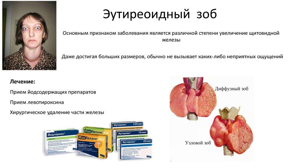 Сактосальпинкс на узи: причины возникновения, классификация, что делать и как лечить. сактосальпинкс народным методом вылечить