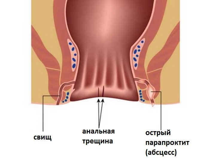 Парапроктит: что это такое, причины, симптомы и признаки острого парапроктита, фото и как его лечить