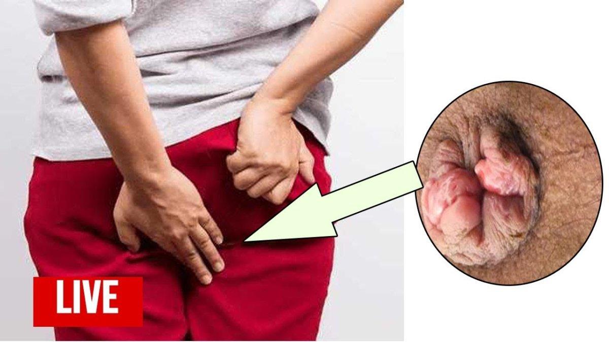 Геморрой: симптомы, фото, лечение. чем лечить геморрой