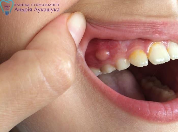Что такое киста корня зуба, каковы симптомы зубной кисты на десне, методы лечения и фото