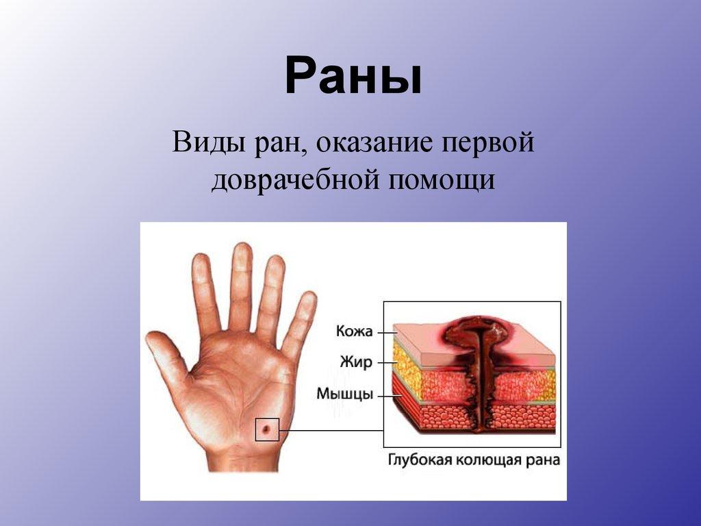 Что такое рана, ее виды, классификация и их характеристика