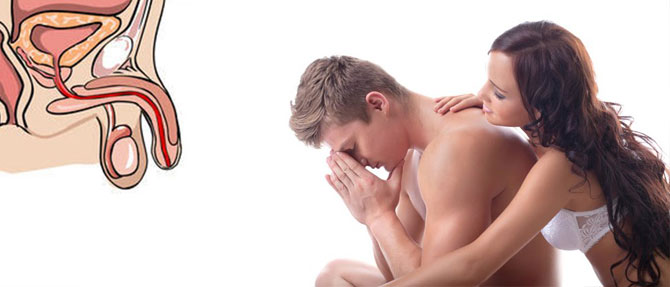 Методы диагностики и лечения эректильной дисфункции различных типов