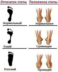 Пронация и что будет, если подобрать «не те» кроссовки?