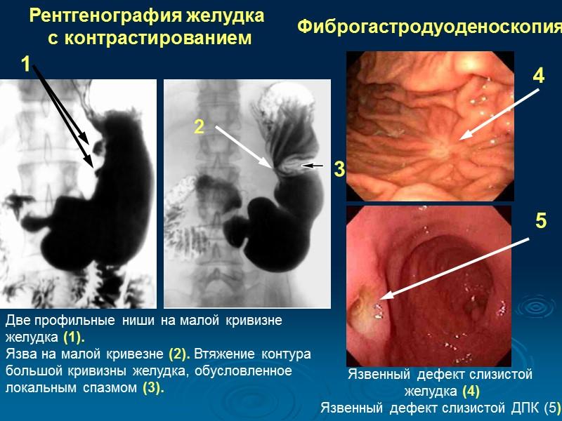 Как делается фгс и фгдс желудка? понятное описание + видео