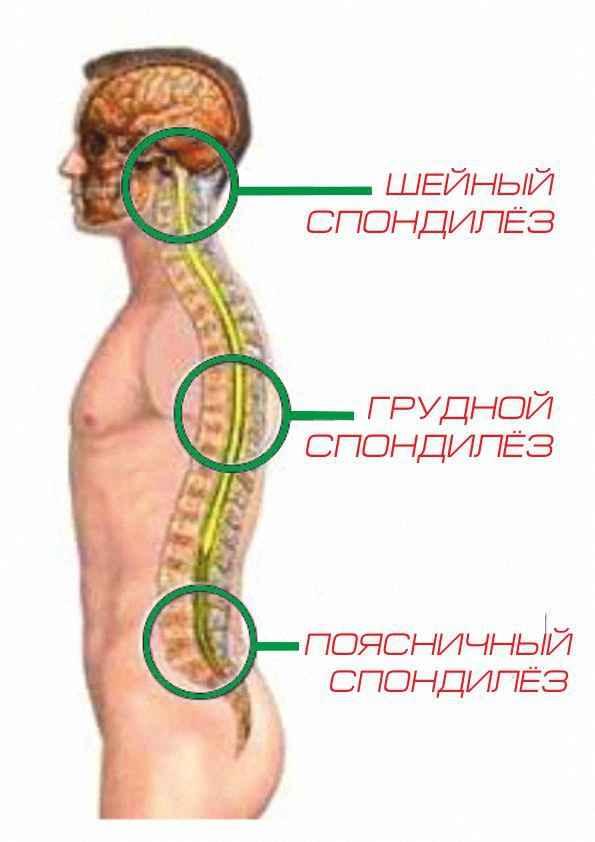Особенности шейного спондилеза