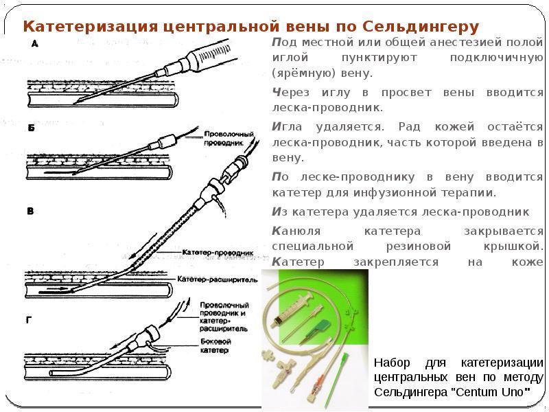 Венозный катетер — что из себя представляет? катетеризация вен