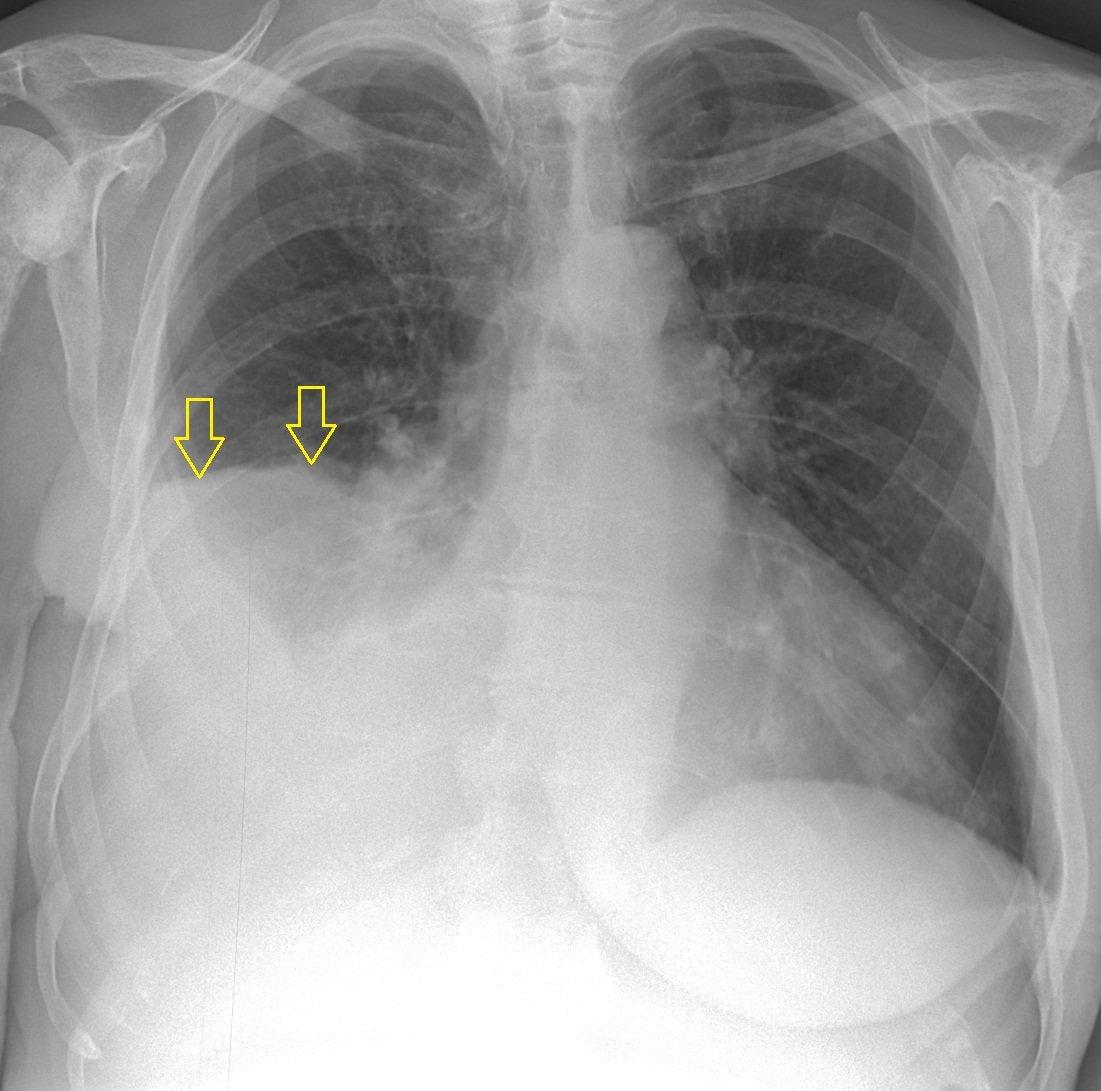 Гидроторакс легких: что это такое, причины, симптомы и признаки болезни