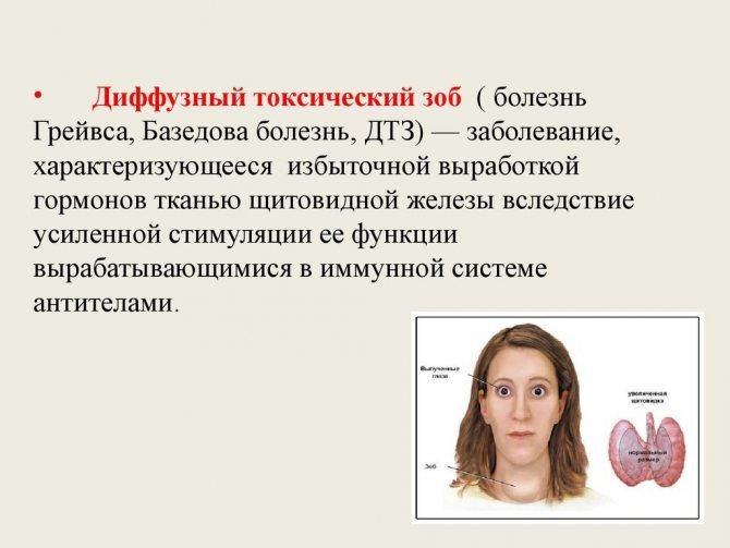 Тиреотоксикоз щитовидной железы: что это такое, лечение, симптомы, причины, признаки