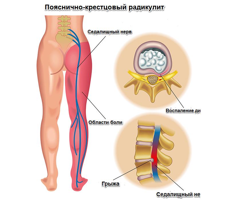 Пояснично-крестцовый радикулит: причины, симптомы и лечение