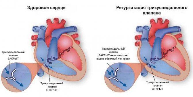 Регургитация 1 степени - здоров.сердцем