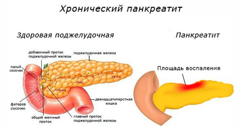 Что такое поджелудочная железа — где находится, признаки заболеваний